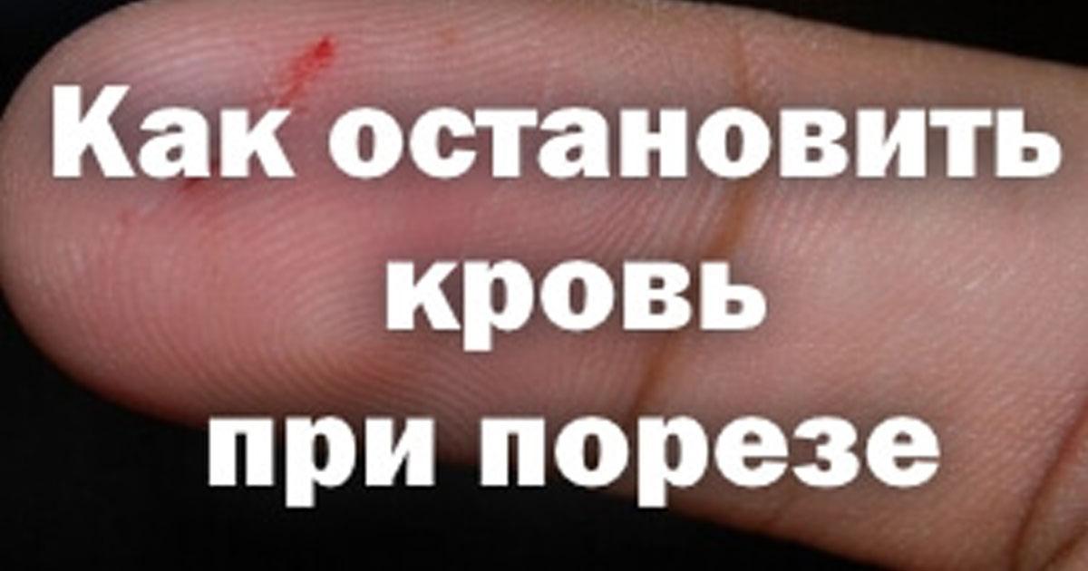 Чем быстро остановить кровь в домашних условиях 577